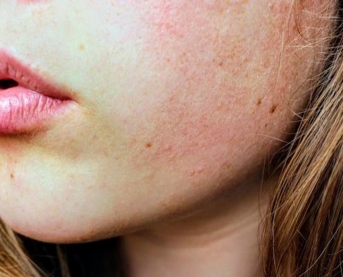 Akne behandeln München | Hautarzt hautOK